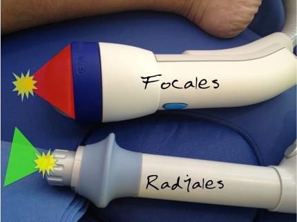 Estos son los dos tipo de aplicadores de ondas de choque utilizados para aplicaciones medicas. Los equipos focalizados aplican la energia maxima en un punto distante, mientras que los radiales aplican esta energia al contacto con el aplicador. (www.fenwaymedical.org)
